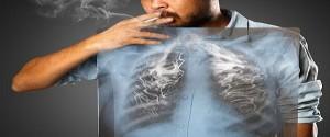 No intoxicar sus pulmones: loable modo de alargar su vida