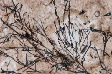Microfósiles