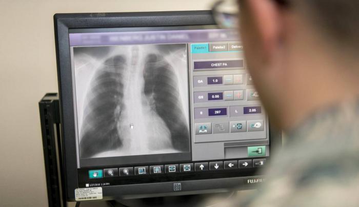 Radiografías de tórax para detectar la COVID-19 Foto: Tomada de Internet